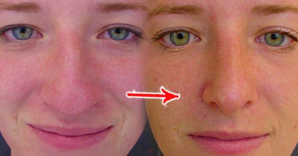 Face Yoga Method For Nose Spotgymyoga Org