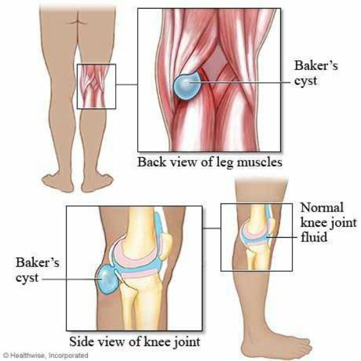 Baker's Cyst – Symptoms, Causes, And Treatments Exercises