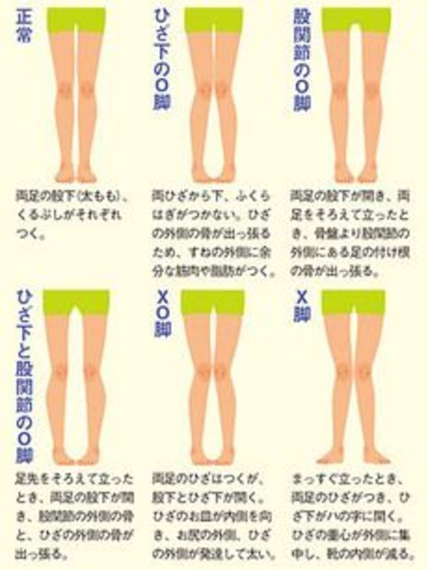 x脚 矯正 歩き方