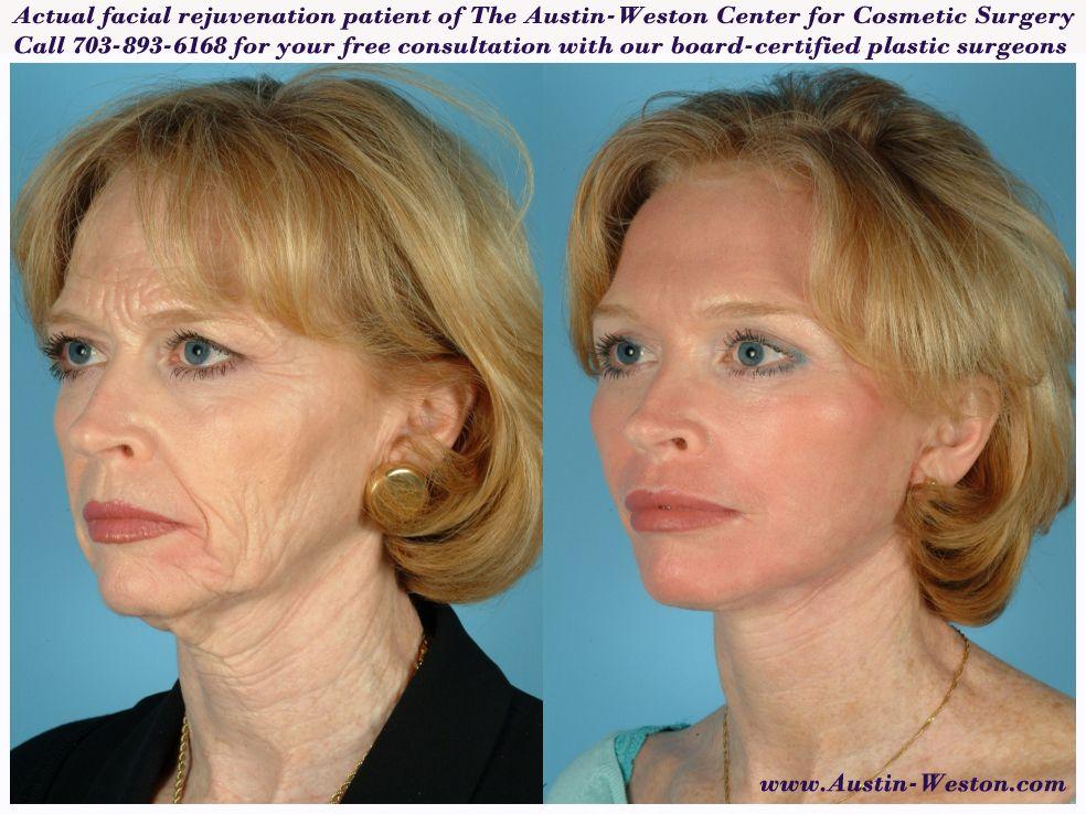Center for facial cosmetic near