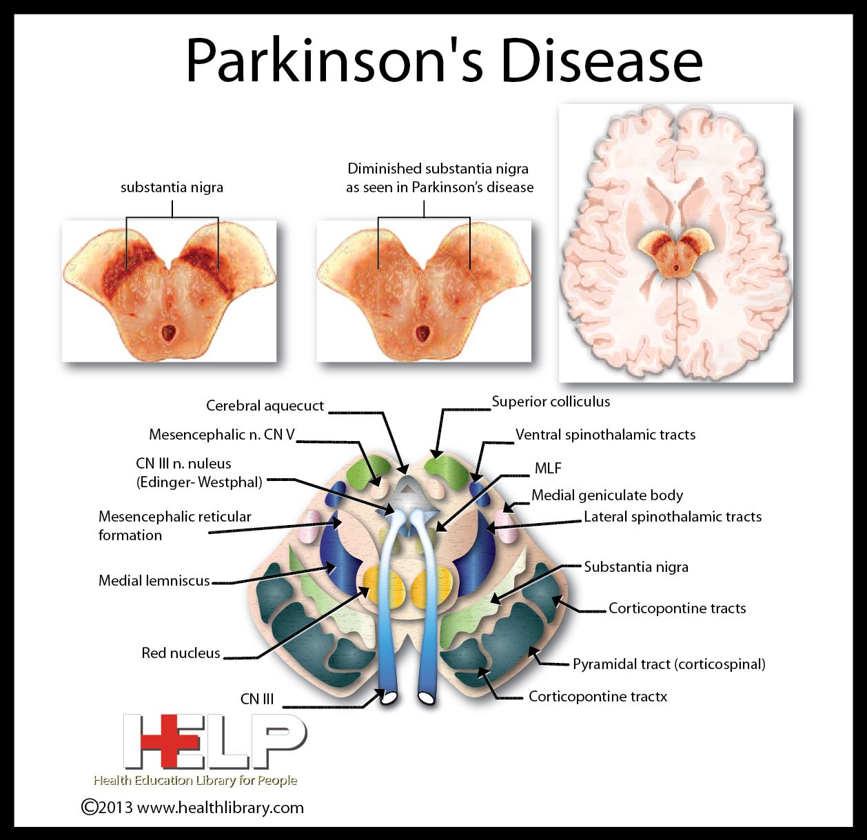 parkinsons disease A diagnosis of parkinson's disease is life-changing but breathe.