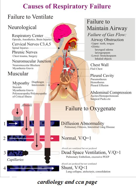 Respiratory Failure Nursing Pinterest