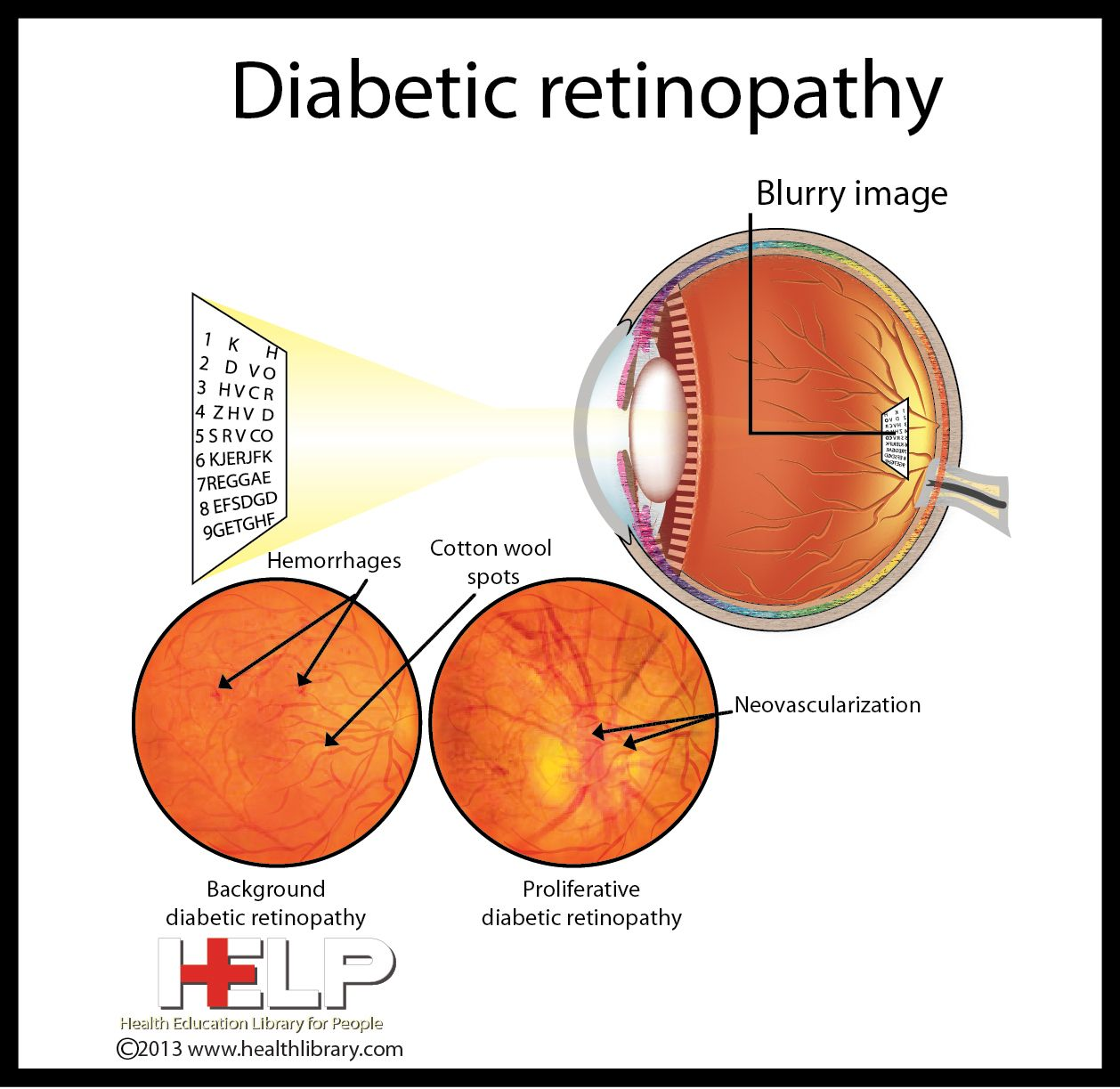 diabetic paper retinopathy term Trends in hospital admission for diabetic ketoacidosis in adults with type 1 and type 2 diabetes in england,  published in the june 2018 issue of diabetes care,.