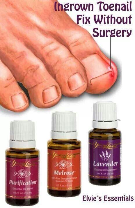 how to fix an ingrown toenail without surgery
