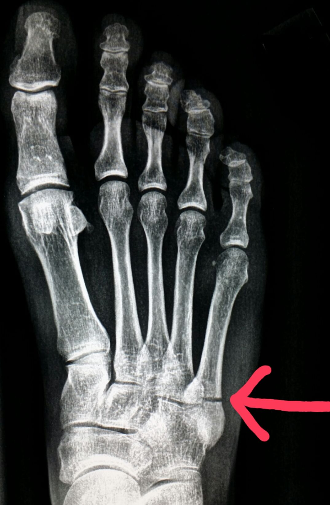 Foot fracture x ray pictures Broken Foot Signs, Symptoms, Pictures, Recovery Time