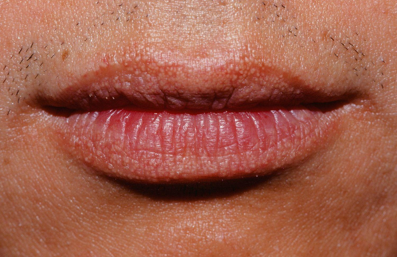 Причины гранул фордайса на губах