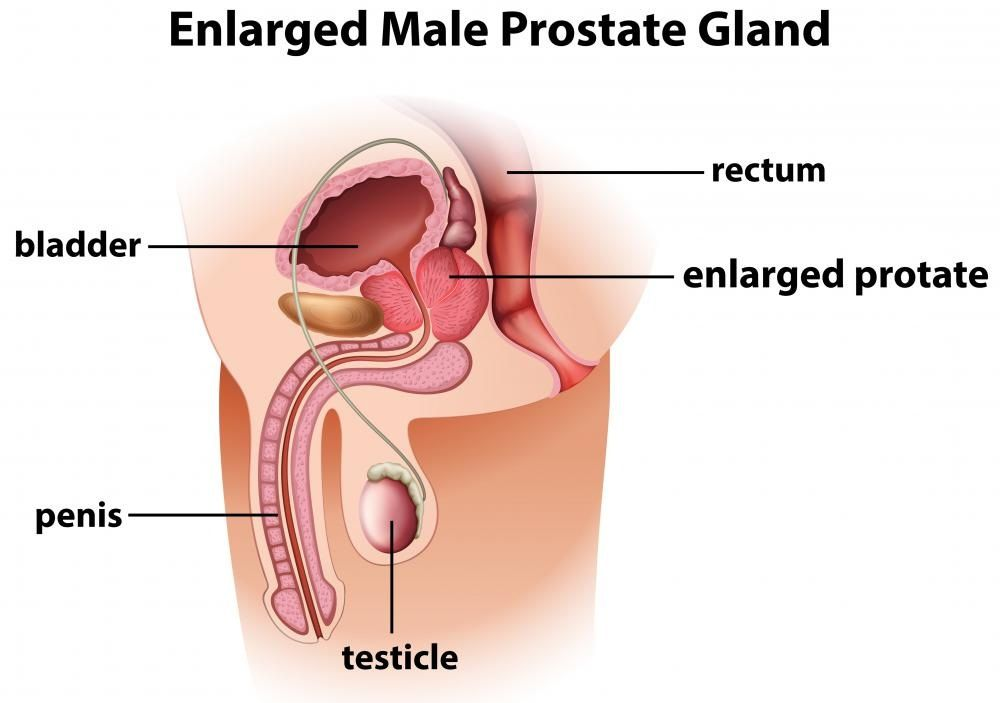 Anatomy of prostate gland pictures