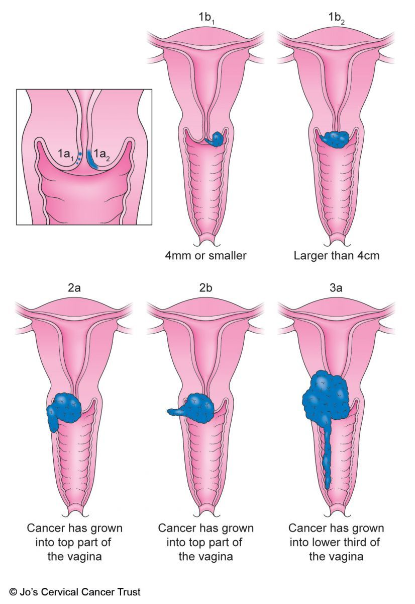 How to Detect Uterine Cancer How to Detect Uterine Cancer new images