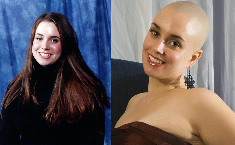 Bald Women Before After