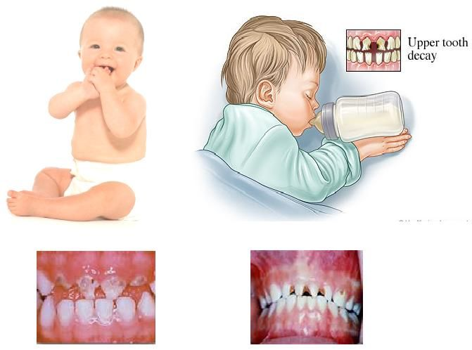 Baby teeth in adults strength