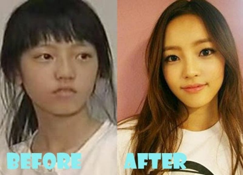 South Korean ruins her looks with surgery to   Mail Online