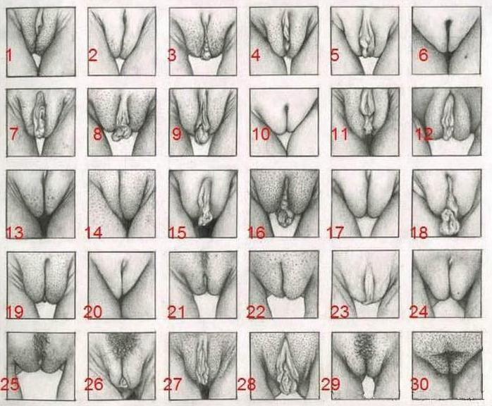 виды вагин картинка