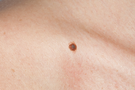 Watch 9 Tips For Age Spot Removal And Prevention video