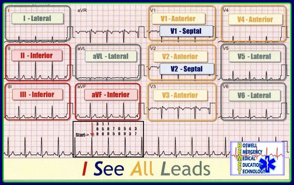 12 lead wiring diagram  12  get free image about wiring