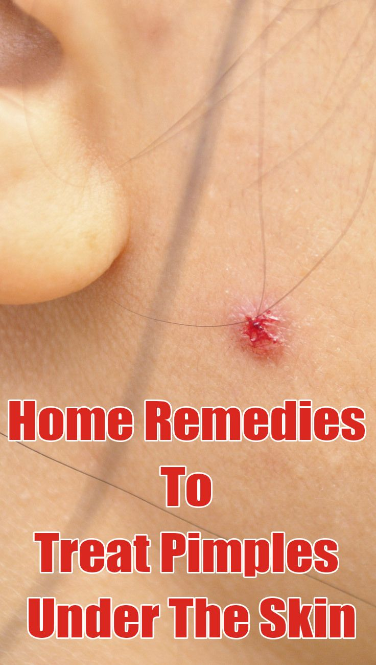 4 Effective Ways To Treat Pimples Under The Skin
