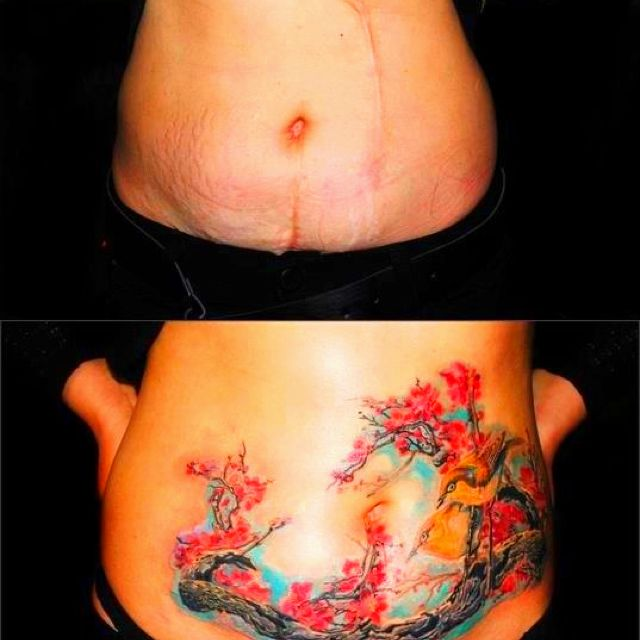 The gallery for stomach tattoos to cover stretch marks for Stretch marks tattoo cover up