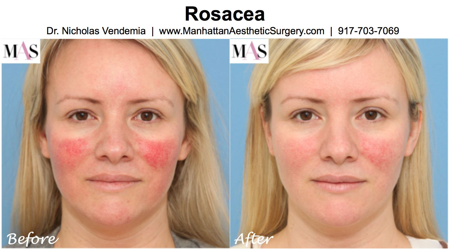 Laser facial treatment for roscea