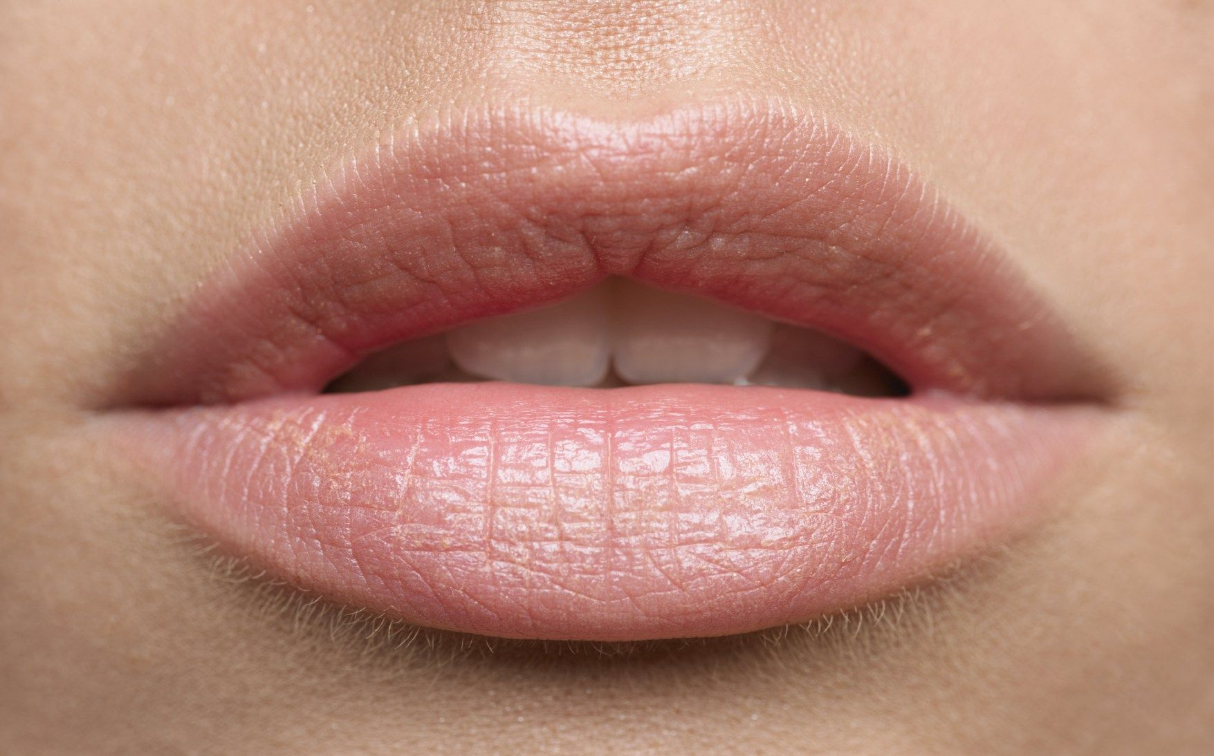 Cached Sun spots on lips pictures