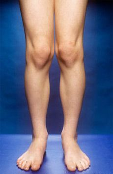 How to Cure Knock Knees Naturally