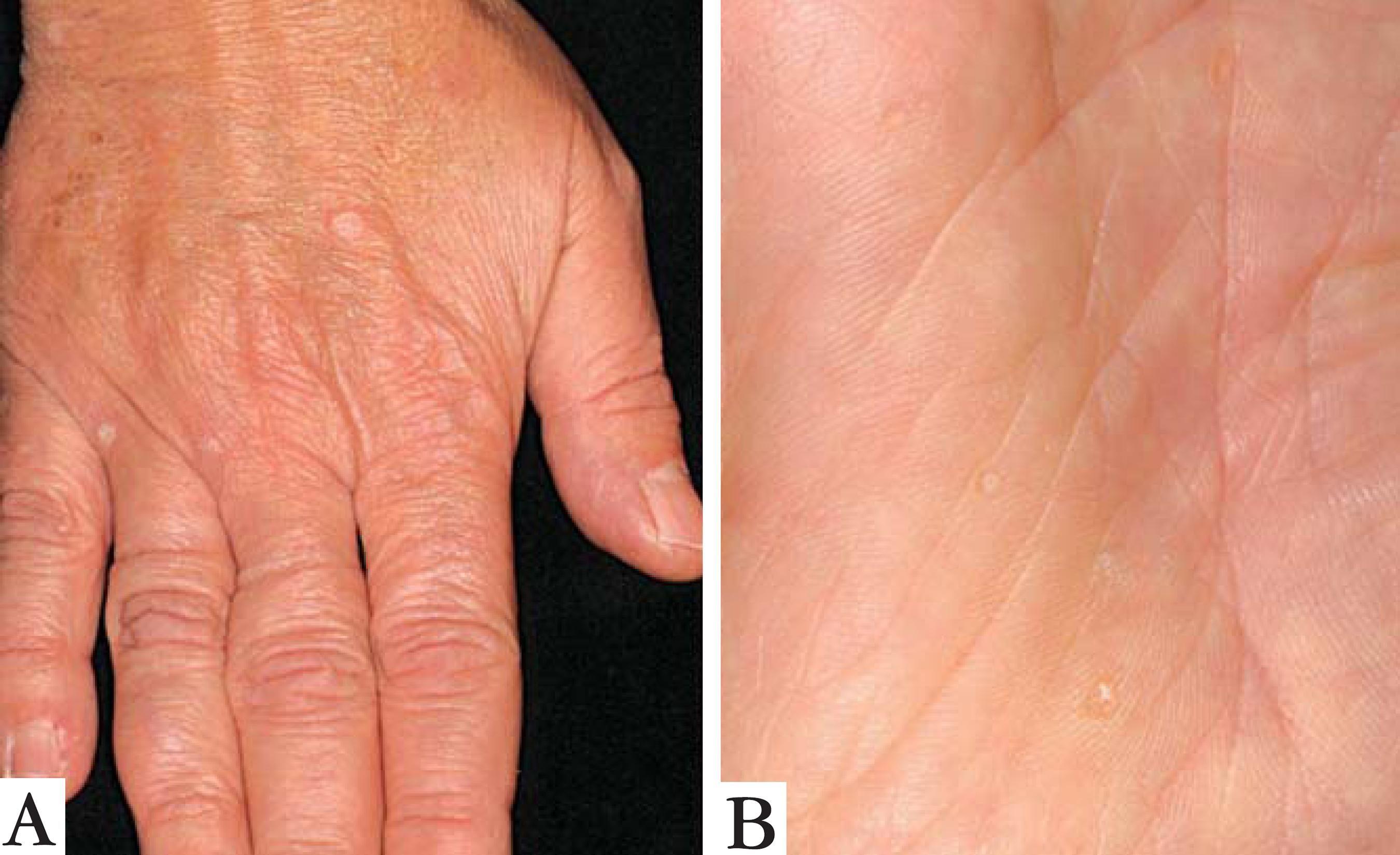 Seborrheic Keratosis Causes Wart Like Skin Growths ...