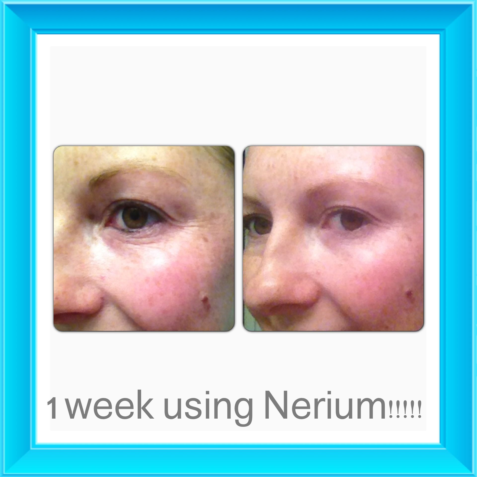 Nerium AD Side Effects