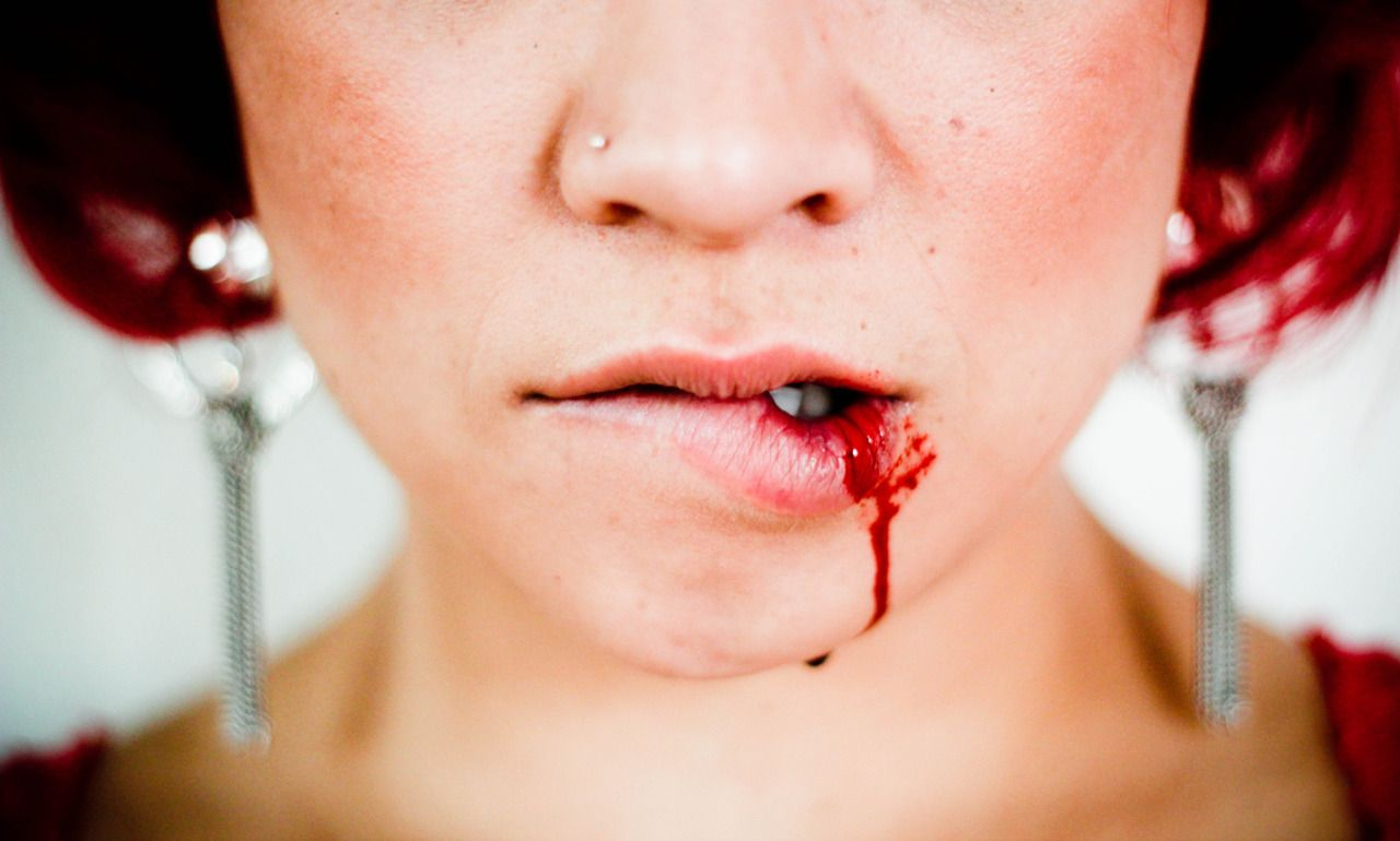 Bloody Lips Bloody lip.   b...