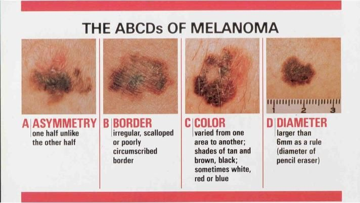 Must-Know Facts About Melanoma