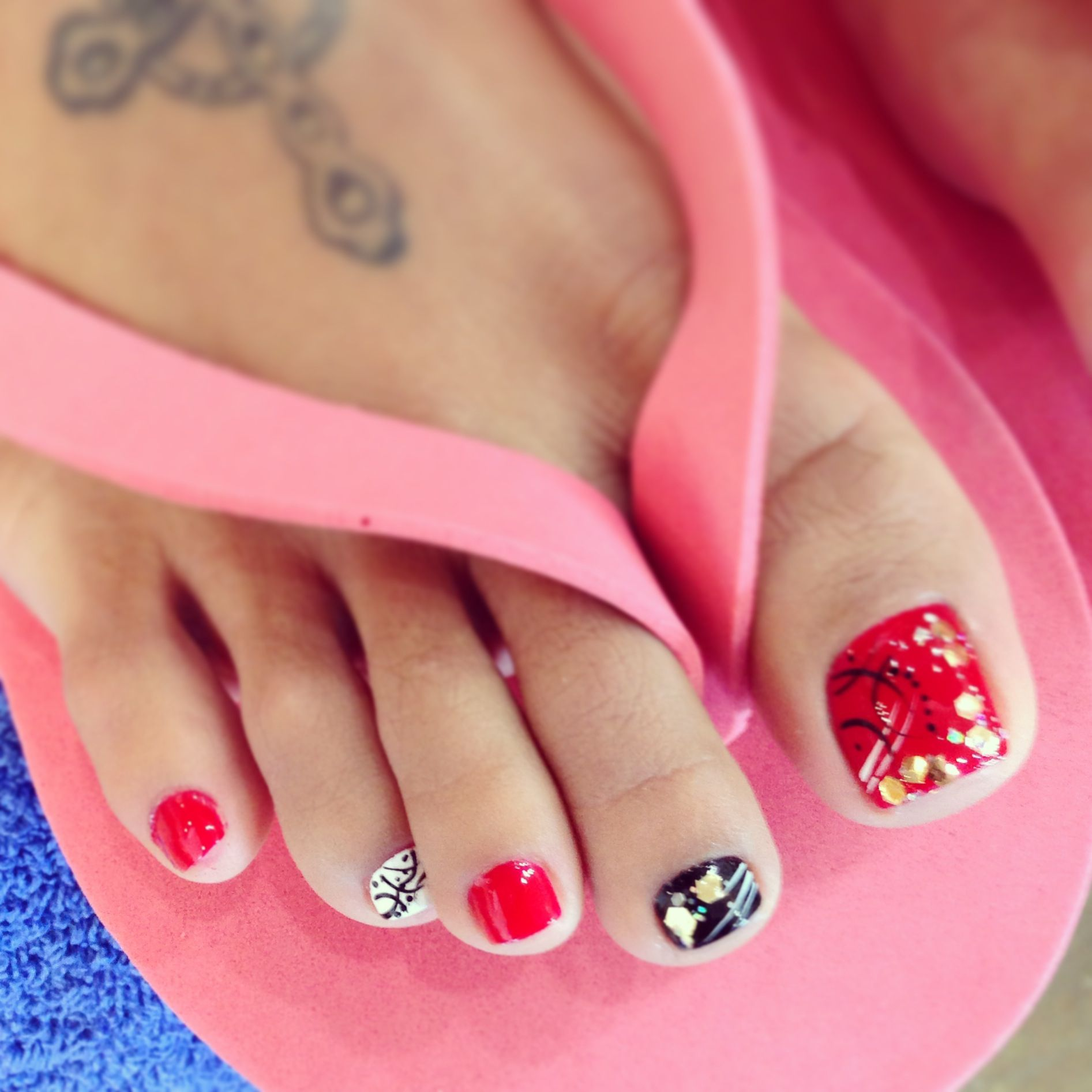 Little Red Bumps on the Toes | LIVESTRONG.COM