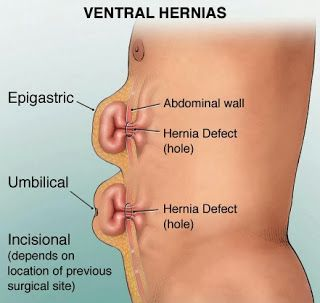 Know The Causes And Treatment Of Umbilical Hernia In Hindi pics