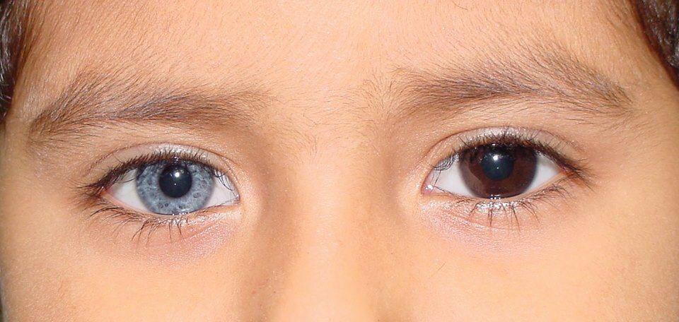 Heterochromia iridis | Heterochromia iridis | Pinterest