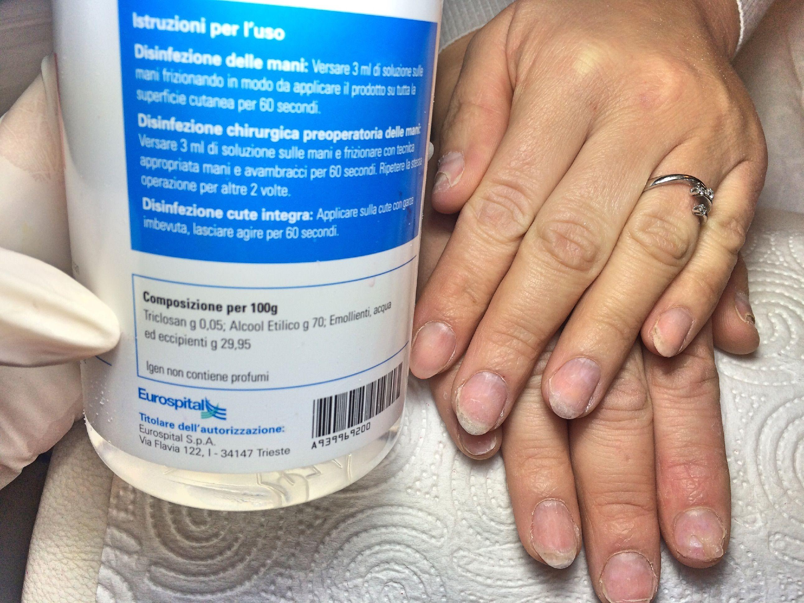 Trattamento di un fungo di unghia al dermatologo