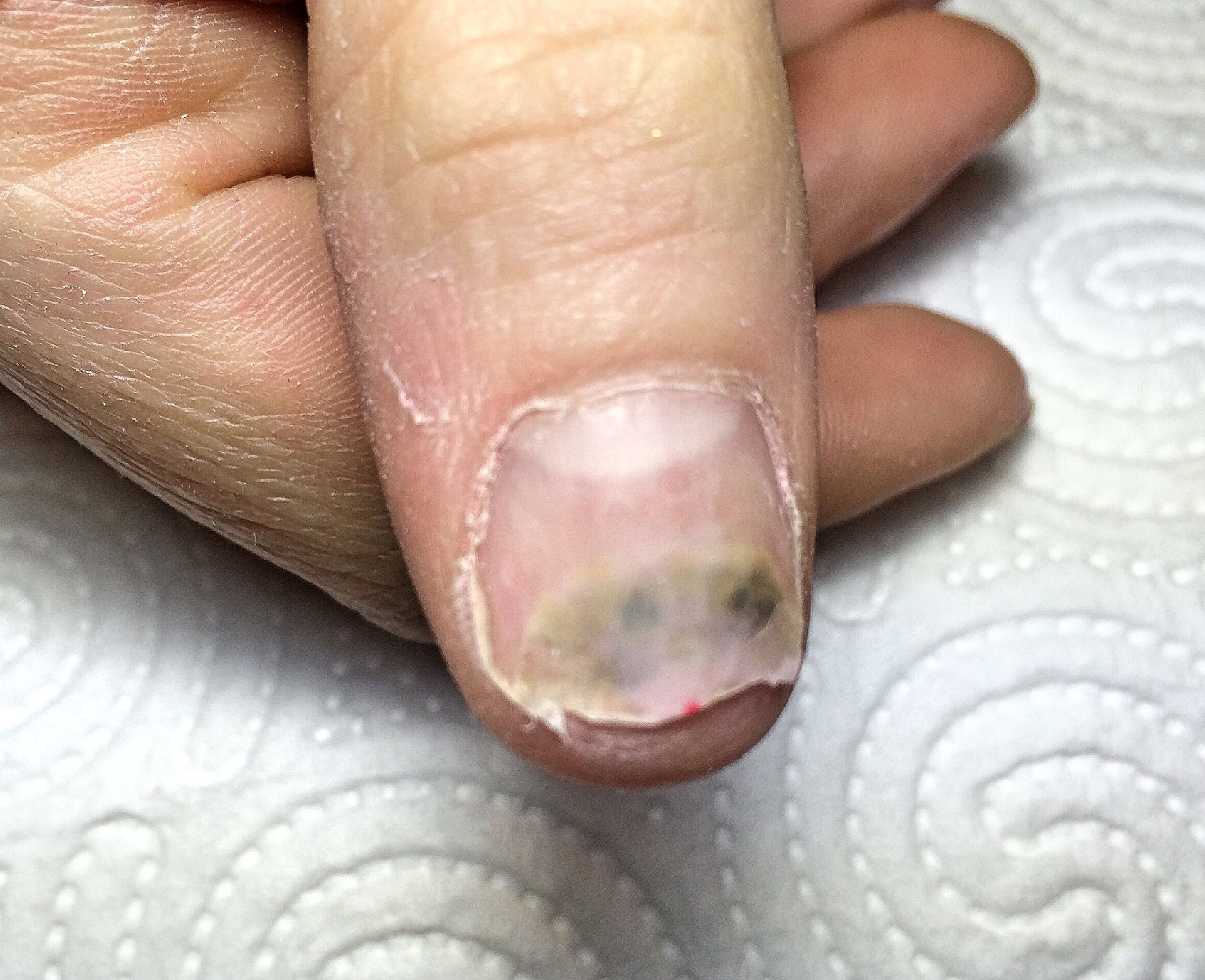 Vuoto sotto ununghia su un trattamento di pollice a mano