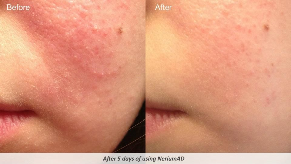 Nerium Acne Before and After