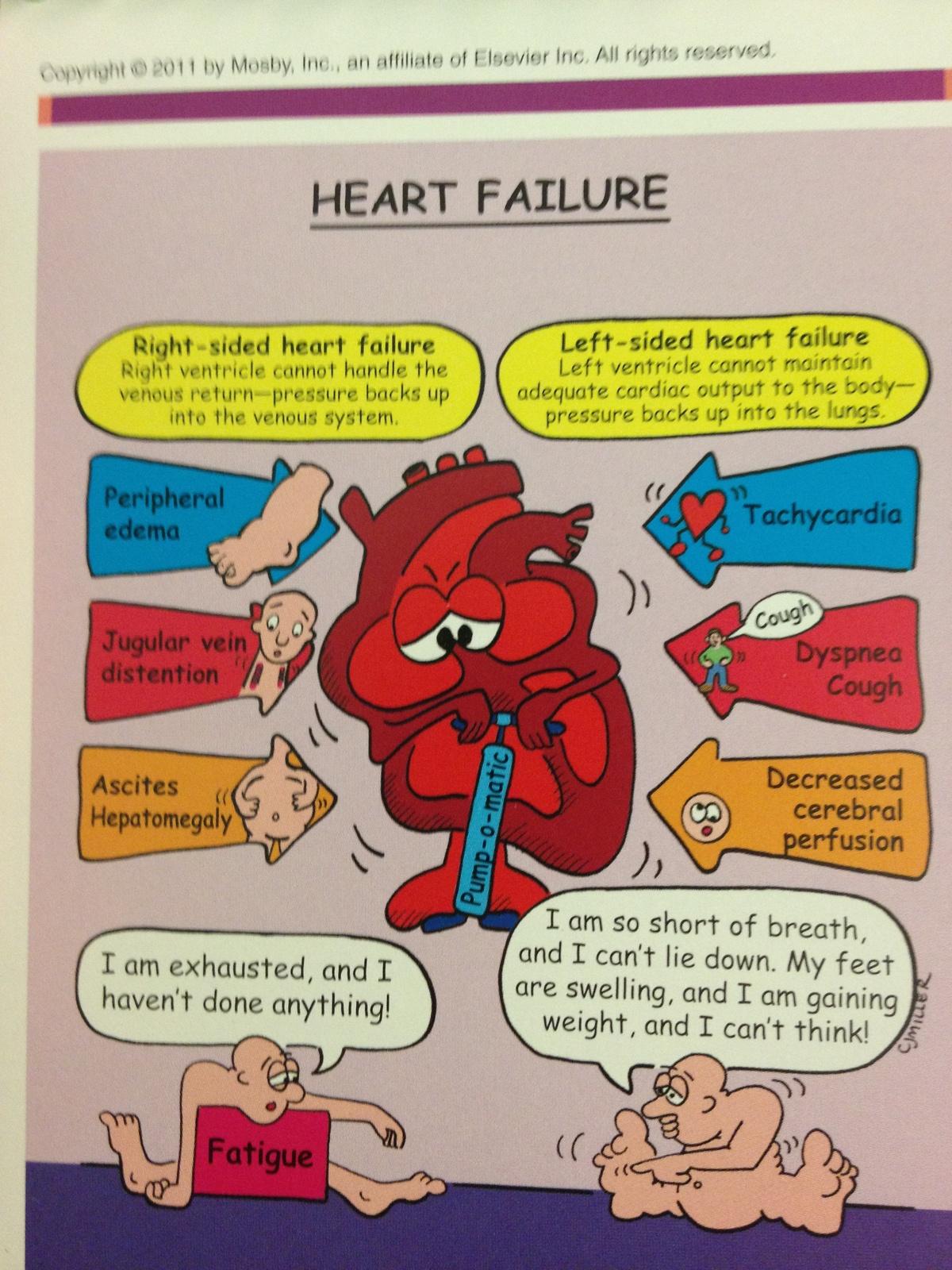 Pathophysiology right side heart failure case study