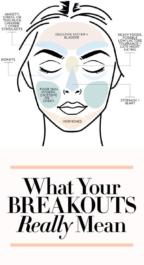 What your #breakouts really mean. #acne #facemapping #pimples #skin
