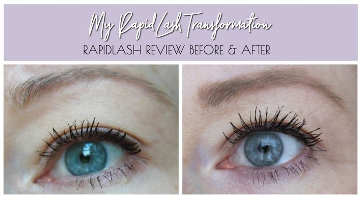 My Lash Transformation! RapidLash Review • Realizing Beauty