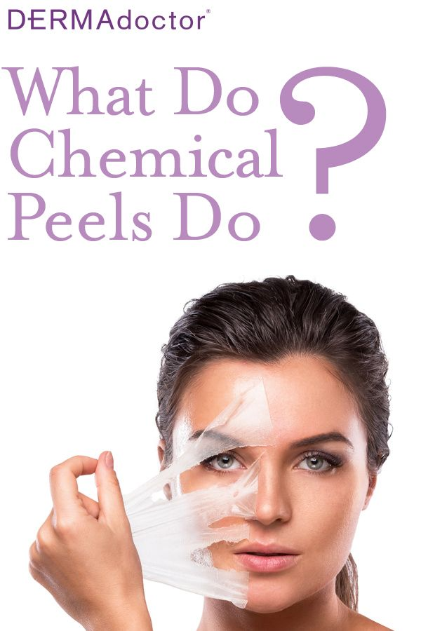 What Do Chemical Peels Do #chemicalpeel #exfoliate #microdermabrasion