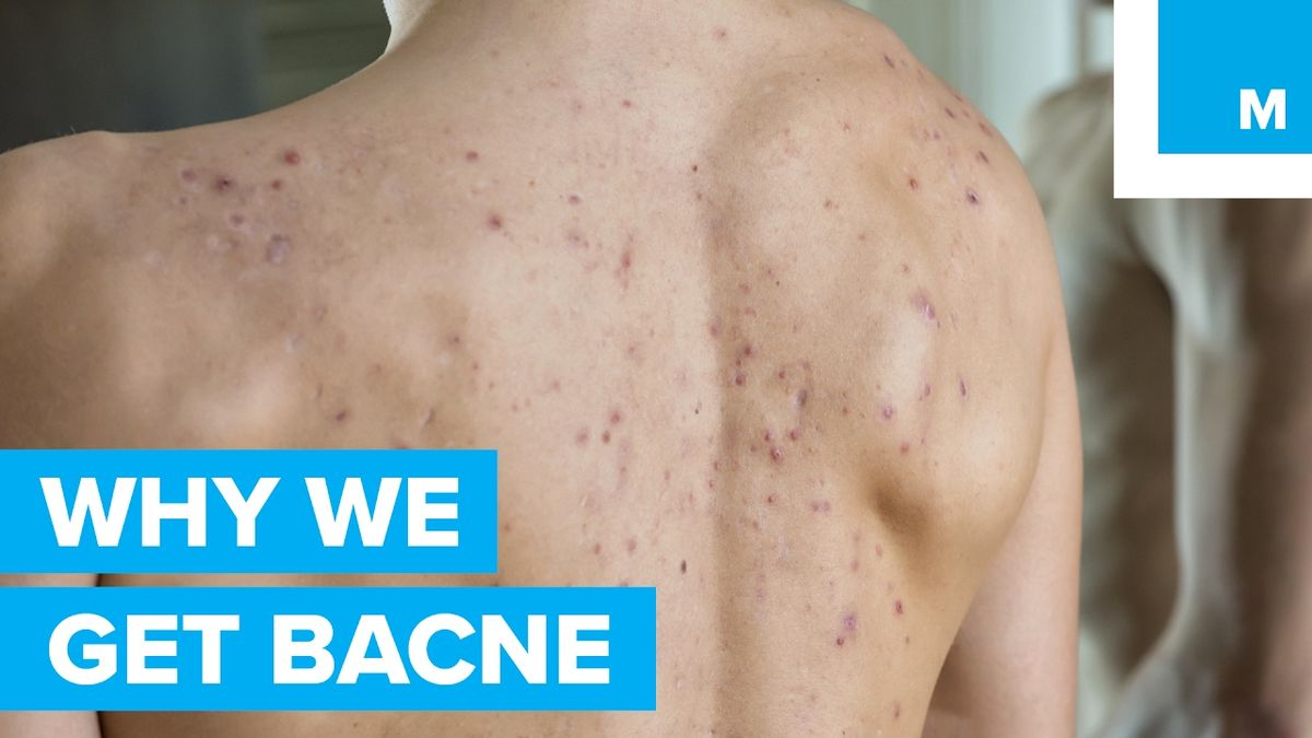 """The Science Behind Why """"Bacne"""" Happens to Good People - Sharp Science"""