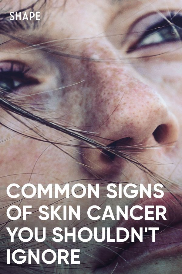 Common Signs of Skin Cancer You Shouldn't Ignore
