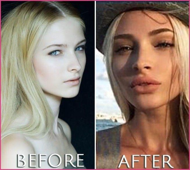Alena Shishkova plastic surgery before and after photo | Alena … » Plastic Surgery Before And After #plasticsurgery #beforeandafter #celebrities #alenashishkova