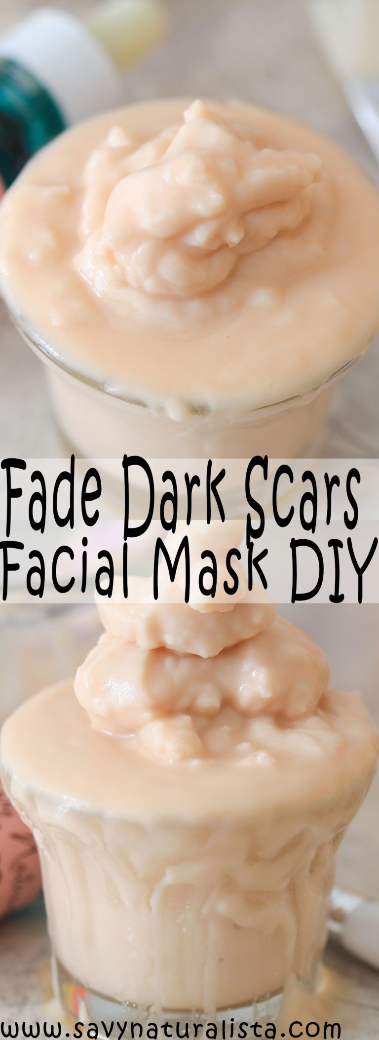 If you have dark scars try this easy all-natural mixture of baking soda and apple cider vinegar to make your skin glow and fade away dark scars.
