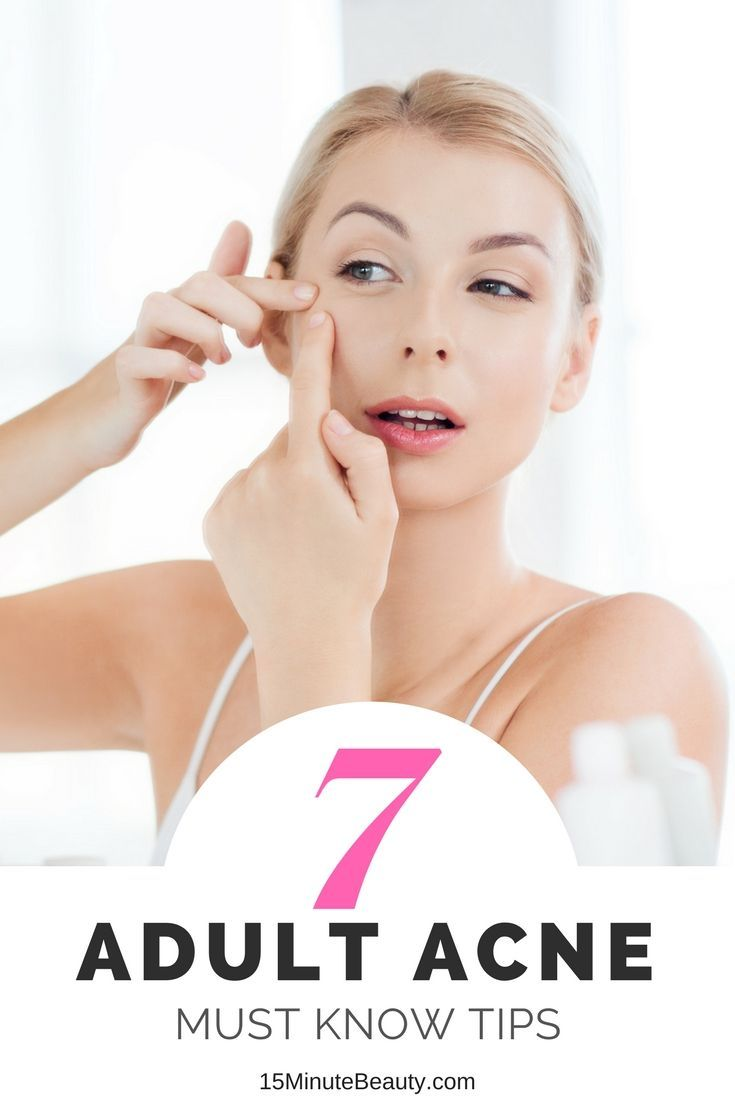 The best tips for treating adult acne that you never knew! Follow these tips to treat your skin and clear it up!