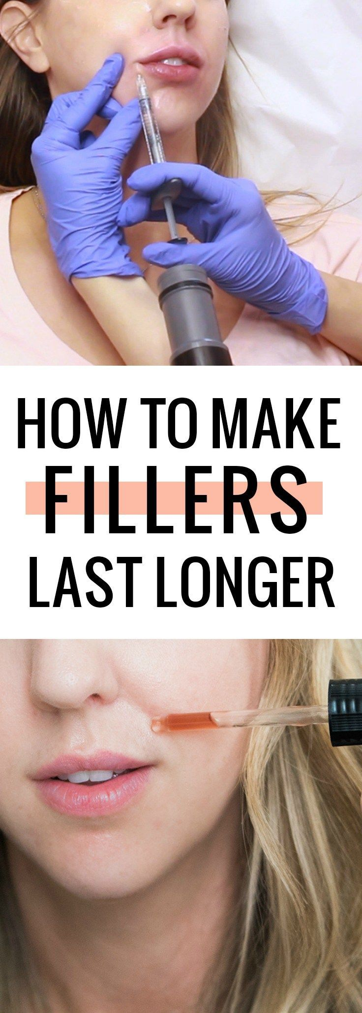 How to make fillers last longer – come see how I maintain my fillers!
