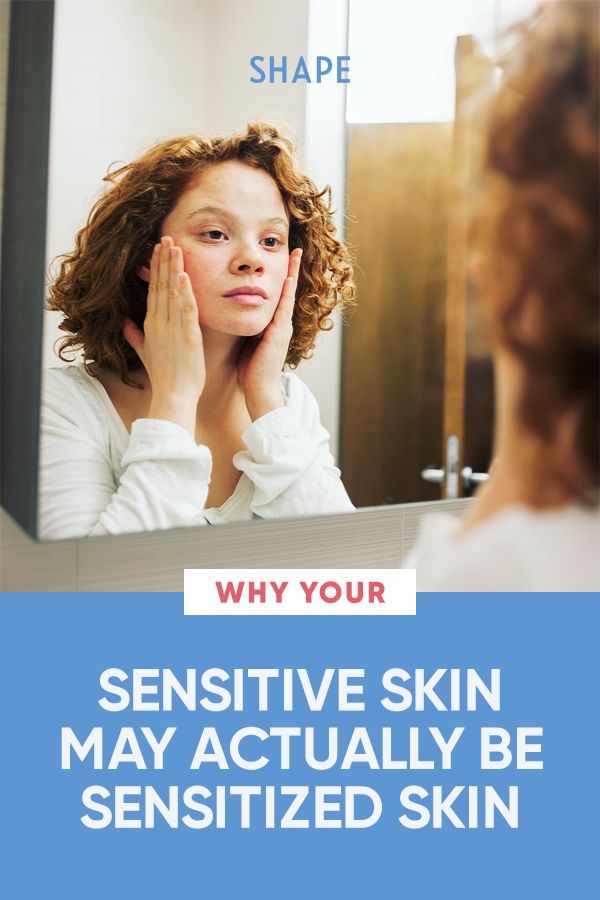 Your Sensitive Skin Might Be a Totally Different Condition