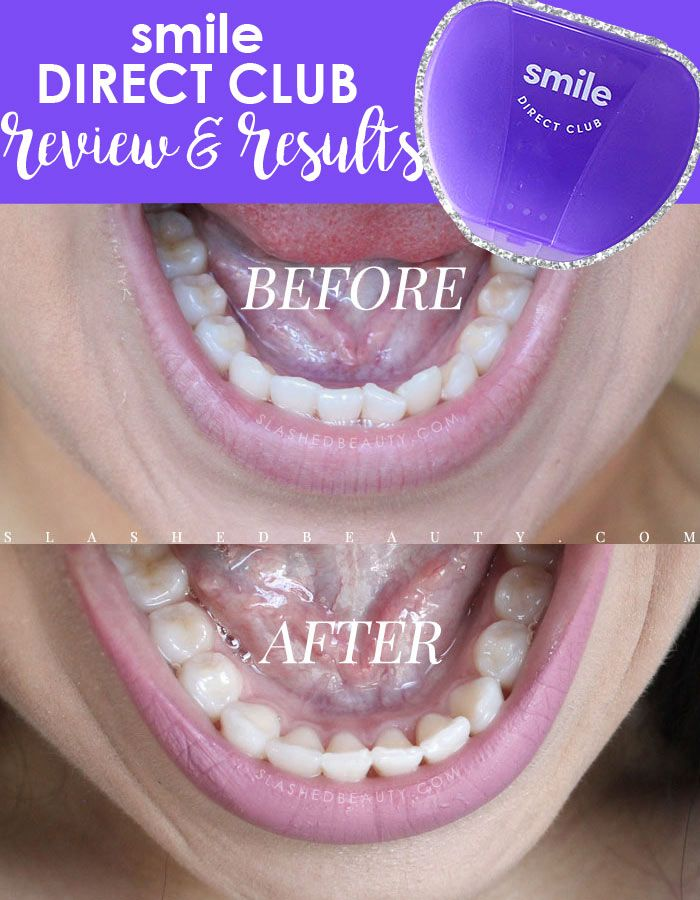 Smile Direct Club offers affordable clear braces delivered straight to your door. See my before and after, plus read the full review to see if it's a fit.