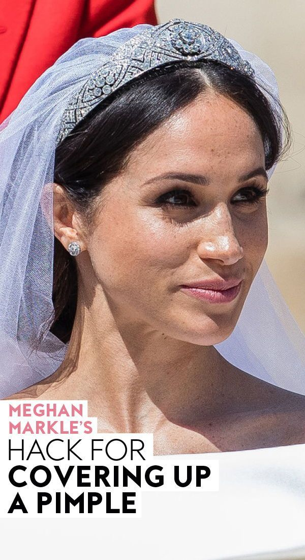 #MeghanMarkle's hack for covering up a #pimple. #makeup #beauty #makeuptips #makeuphacks #concealertrick