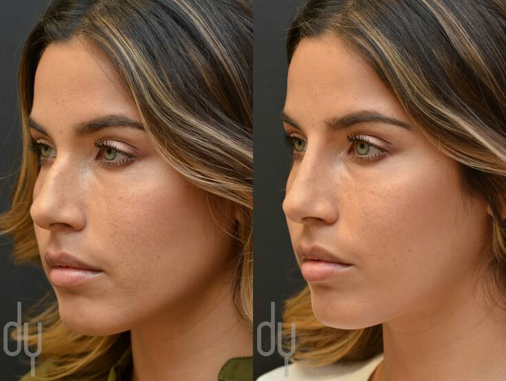 Pin by Abbie Jackson on Body&Facial Wanted Nonsurgical
