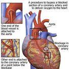 Minimally Invasive Coronary Artery Bypass | Heart Surgery Info