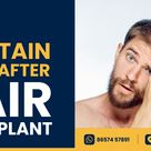 How to Maintain a Healthy Scalp After Hair Transplant Surgery