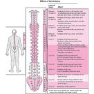 What is Paraplegia and pathology of spinal cord neural injury